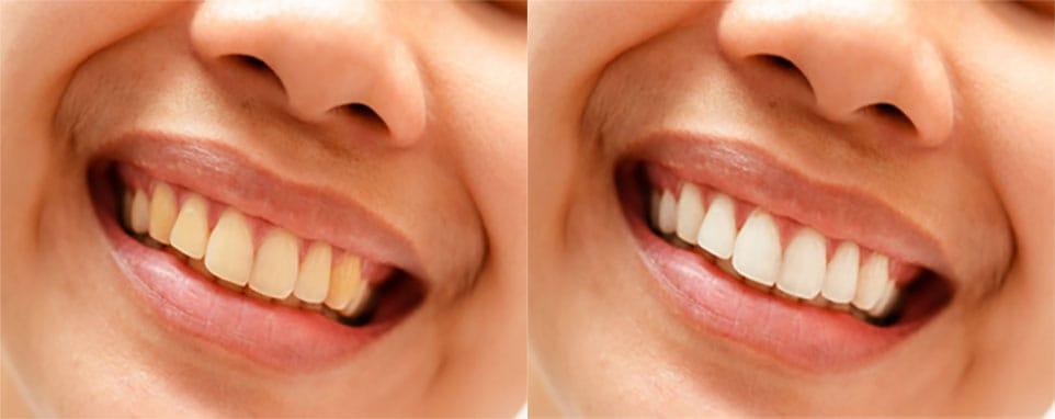 photoshop ile diş beyazlatma
